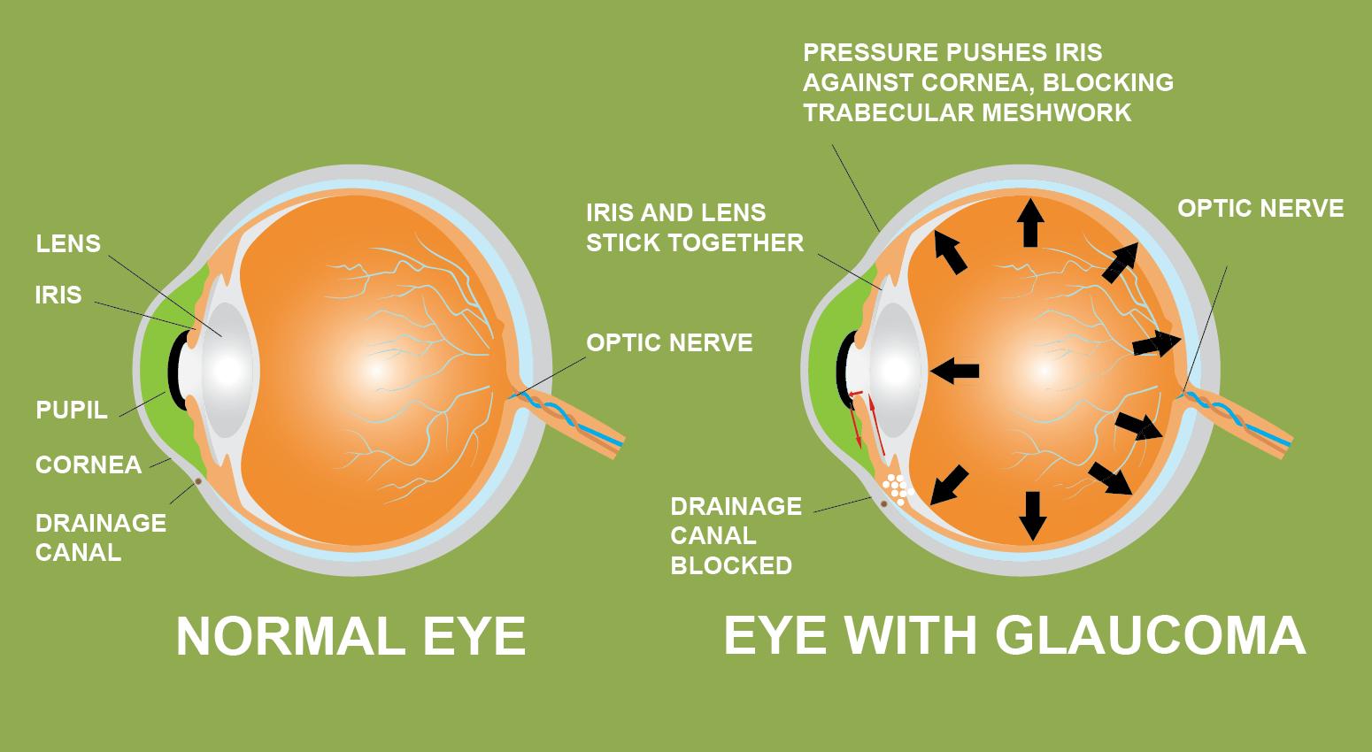 Glaucoma iris lente pupila cornea drenaje canal cannabis prevención