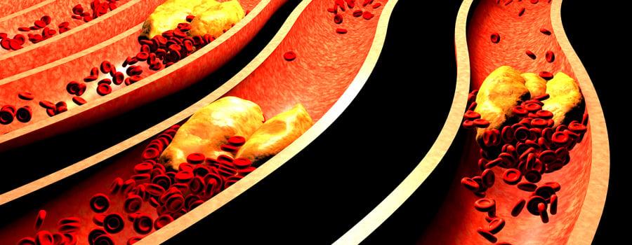 Presión arterial de las células del corazón