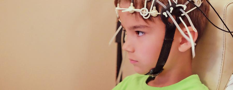 Epilepsia de los niños síndrome de Dravet