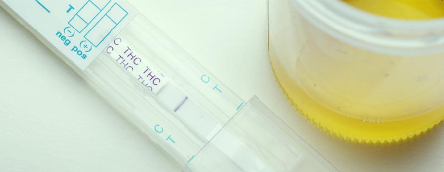 ¿Da positivo el aceite de CBD en un test de drogas?