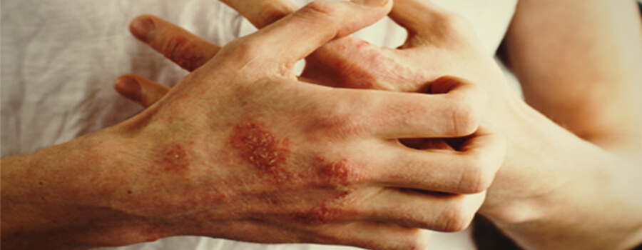 Eczema and allergies