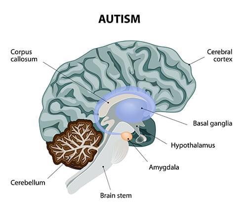 cannabis y autismo