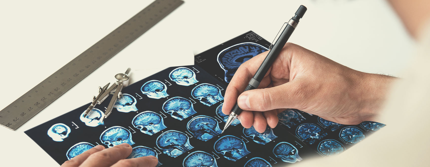 Tipos de esclerosis múltiple